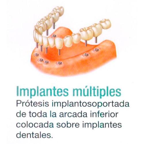 Implantes Múltiples