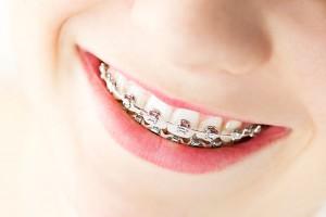 ortodonciaadultos01