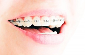 ortodonciaadultos02