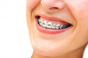 ortodonciaadultos03