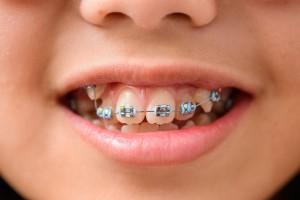 ortodonciainfantil01