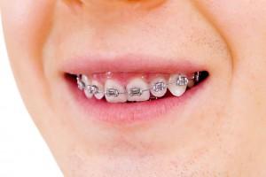 ortodonciainfantil02